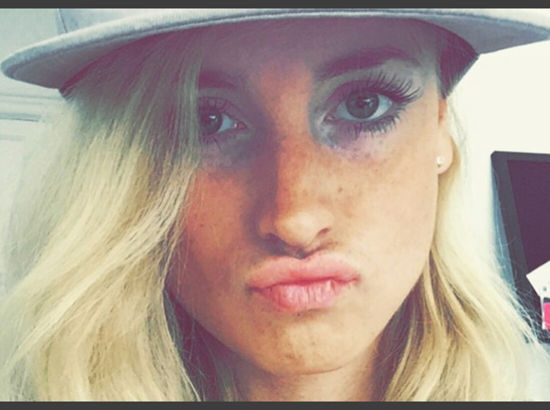 KL Matilda Söderlund Instagram Selfie überbelichtet
